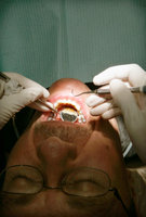 Growing evidence shows that gum disease can be serious ... even fatal